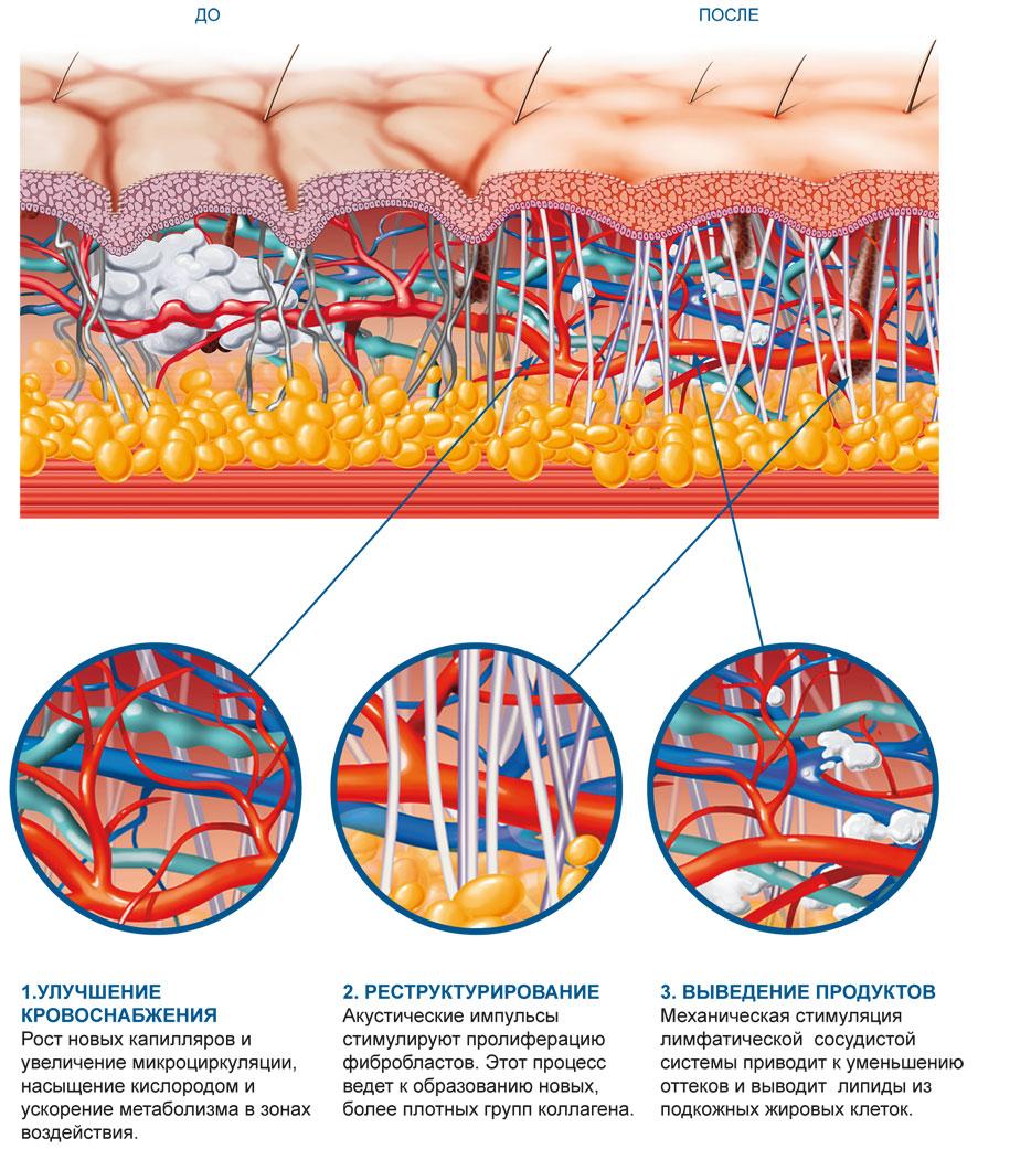 Акустическо-волновая терапия, состояние кожи до и после лечения