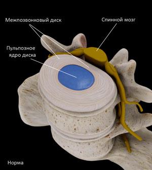Межпозвонковый диск и пульпозное ядро в норме, без остехондроза позвоночника