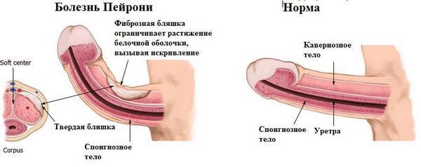 болезнь Пейрони бляшка