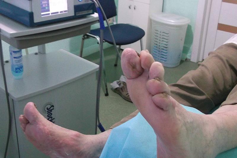 Заживление раны первого пальца после курса лечения ударно-волновой терапии в медицинском центре Аватаж. Оборудование Storz Medical