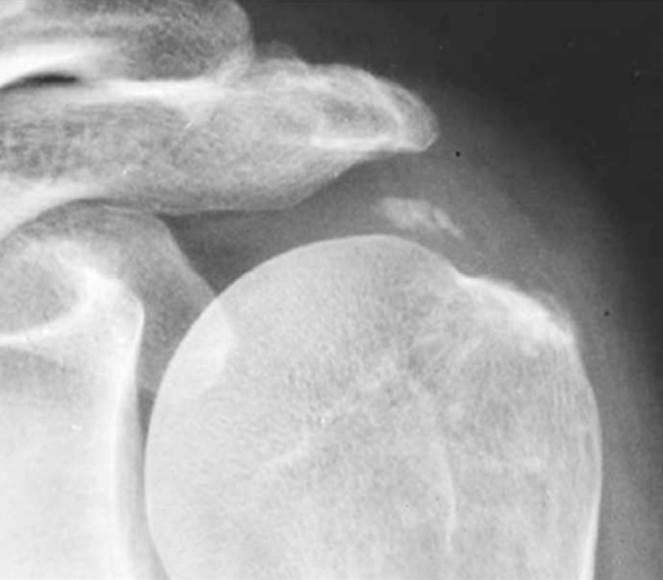 кальцинат в плече случай 2 после лечения
