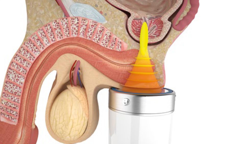 Лечение простатита ударно-волновой терапией на современном аппарате для урологии Duolith T-TOP Ultra.