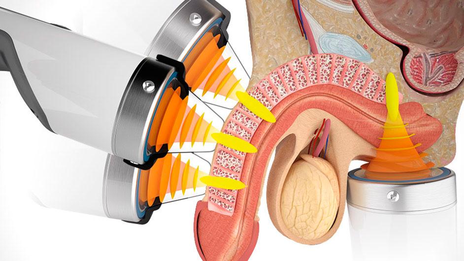 Лечение эректильной дисфункции методом ударно-волновой терапии