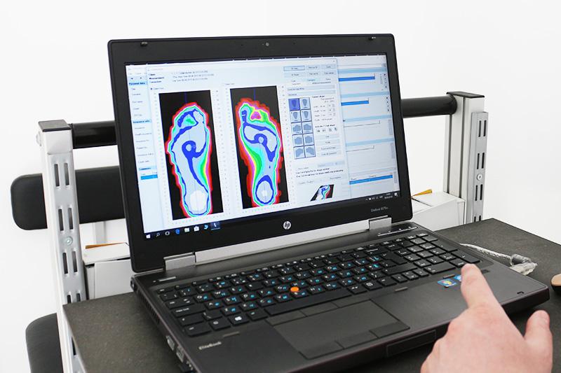 Второй этап изготовление индивидуальных ортопедических стелек по 3D технологии