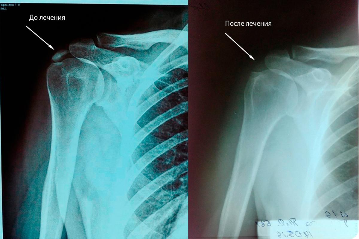 Кальцифицирующий тендинит плеча, до и после курса лечения УВТ