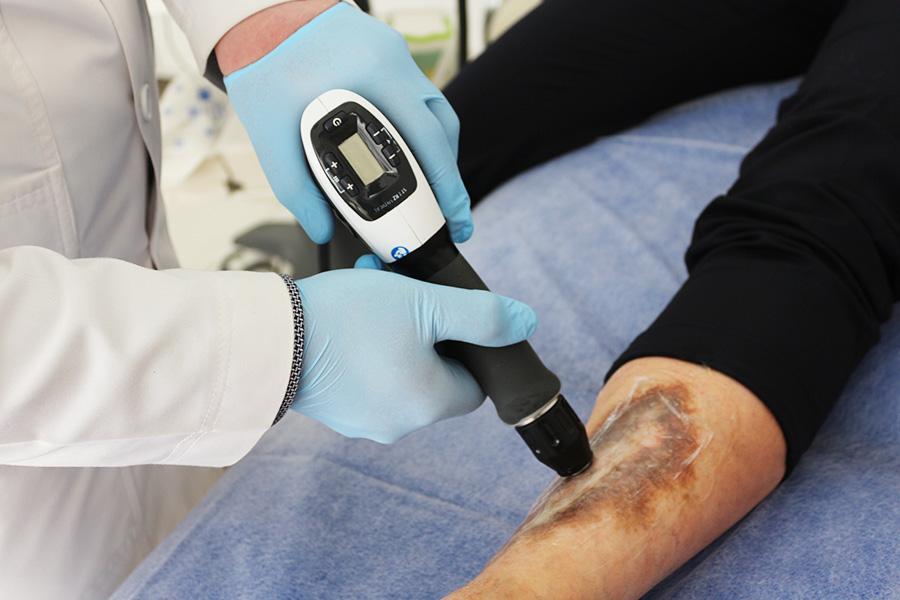 Diabeticheskaya-stopa-lechenie-RSWT